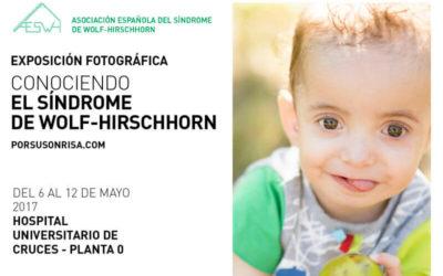 """La Exposición Itinerante """"Conociendo el Síndrome de Wolf-Hirschhorn"""" llega a Bilbao"""