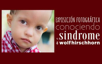 """La Exposición fotográfica """"Conociendo el Síndrome de Wolf-Hirschhorn"""" viaja a Cádiz"""
