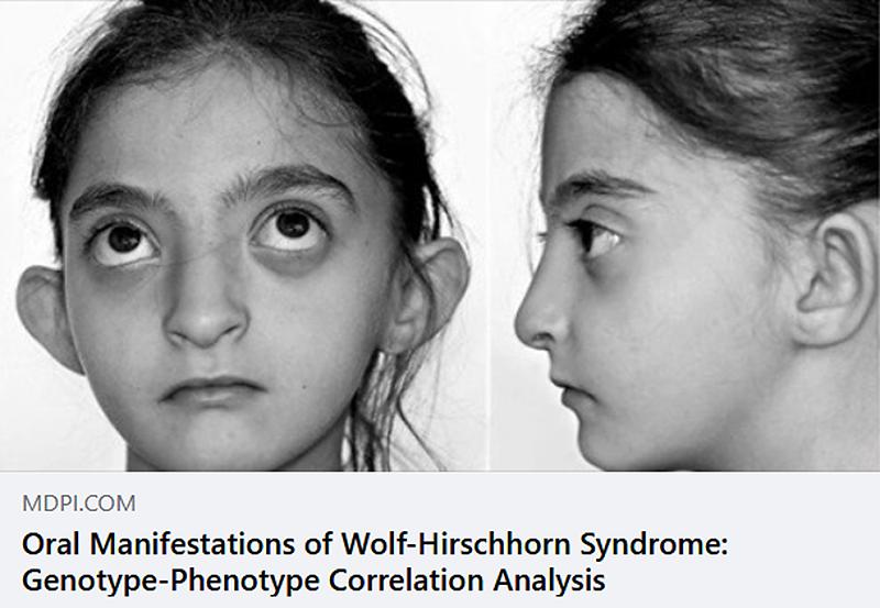 Publicación del artículo sobre las características orodentales de los pacientes con SWH